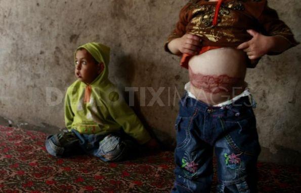 עלי (4) ופראח (2) אבו חלימה, שפצצת זרחן נפלה על ביתם ב-4 לינואר 2009. תצלום: אימן מוחמד