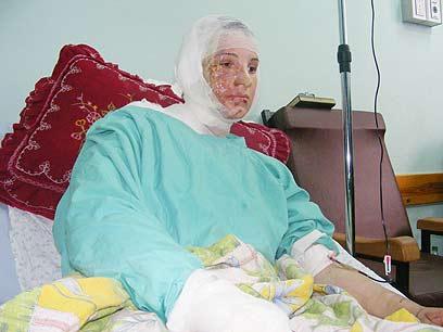 """ר'אדה אבו חלימה (20), זמן קצר לפני מותה. תצלום: מוחמד סבאח, """"בצלם"""""""